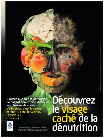 Le visage caché de la dénutrition
